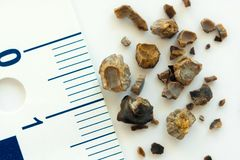 Kidney stones. After ESWL intervention. Lithotripsy. Macro shot stock photos