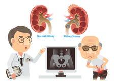 Kidney Stones Stock Photography