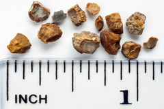 Kidney stones. After ESWL intervention. Lithotripsy. Scale in inches Stock Photography