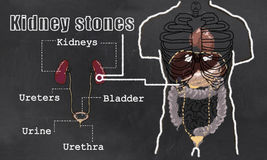 Kidney Stones illustration Royalty Free Stock Images