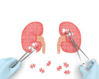 Kidneys operation puzzle Royalty Free Stock Photos