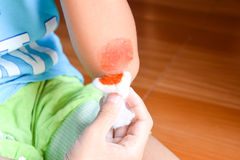 Kids clean the wound hand Stock Image
