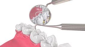 Kieferzähne und Zahnarztspiegel 3d Stockfotos