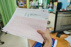 Kierowa analiza, elektrokardiograma wykres ECG w ręki lekarce przy szpitalem obrazy stock