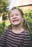 Kind met een tand orthodontisch apparaat en zonder één tand stock afbeeldingen