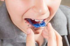Kind met orthodontisch toestel royalty-vrije stock foto's