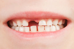 Kind mit einem Zahnplatz Stockfotos
