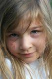 Kind mit Kratzen lizenzfreie stockbilder