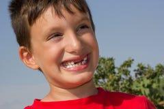 Kind mit zahnlos Lächeln Stockfoto