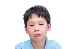 Kindgezicht met uitbarsting over wit stock afbeeldingen