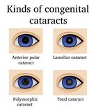 Kinds of congenital cataracts Royalty Free Stock Image