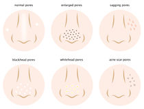 Kinds of skin pores royalty free illustration