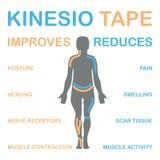 Kinesiologie het vastbinden verbetert spiersamentrekking stock afbeeldingen