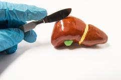 Kirurger räcker i blå skalpell för latexhandskeinnehav över anatomiskt diagram av mänsklig lever Begrepp som symboliserar process arkivbild