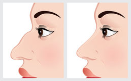 Kirurgi för näsa för kvinnaframsida före och efter Arkivfoton