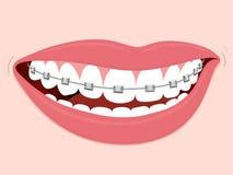 Klammer-korrektive Orthodontie lizenzfreie abbildung