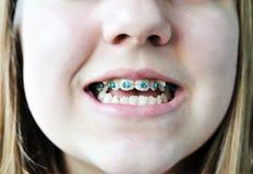 Klammern auf gekrümmten Zähnen Stockbilder