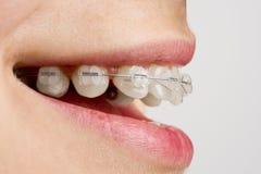 Klammern auf Zähnen Stockfoto