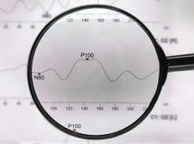 Klasyczny czerń powiększa - szkło medyczna mapa i wykres, fotografia stock