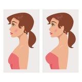 Klatka piersiowa przed i po klingerytem również zwrócić corel ilustracji wektora Obrazy Stock