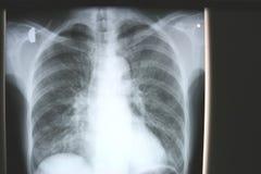 klatki piersiowej istota ludzka Obraz Stock