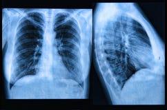 Klatki piersiowej promieniowania rentgenowskiego wizerunek Zdjęcia Stock