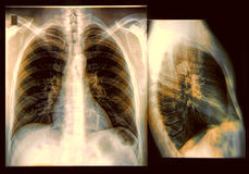 Klatki piersiowej promieniowania rentgenowskiego wizerunek Obraz Royalty Free