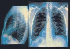 Klatki piersiowej promieniowania rentgenowskiego wizerunek Obraz Stock