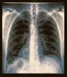 Klatki piersiowej promieniowania rentgenowskiego wizerunek Zdjęcie Stock