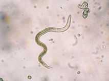 Kläcker larver för den andra etappen för den Toxocara canisen från ägg Arkivbilder