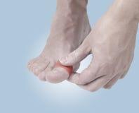 Klebender heilender Finger des Pflasters zu Fuß. Lizenzfreies Stockbild