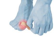 Klebender heilender Finger des Pflasters zu Fuß. Stockfotos