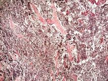 Klein-Zelle Lungenkrebs eines Menschen Stockfoto