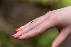 Kleine tik op menselijke vinger, gevaar van de beet van de tik royalty-vrije stock afbeeldingen