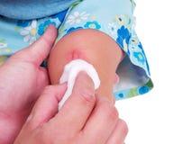 Kleinkind mit einer Verletzung lizenzfreie stockfotografie