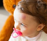 Kleinkind mit großer Quetschung auf seiner Stirn nachdem dem Stoßen stockfoto