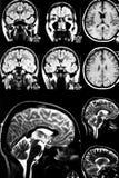Kleurrijk x-ray aftasten van hersenen royalty-vrije stock afbeeldingen