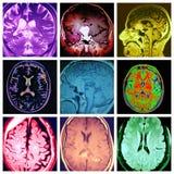 Kleurrijke collage van de hersenen de verschillende pathologie stock illustratie