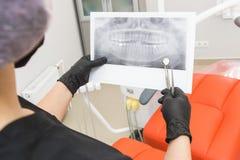 klinika stomatologicznej Przyjęcie, egzamin pacjent Ząb opieka Dentystów spojrzeń promieniowania rentgenowskiego obrazek pacjenta fotografia royalty free