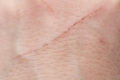 Klipp från katt på mänsklig hud Royaltyfri Fotografi