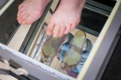 Kliva den Digital fotbildläsningen, den Orthotics fotbildläsningen för specialtillverkade skoinnersulor, ställing och jämviktanal fotografering för bildbyråer