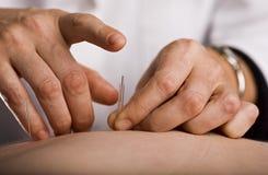 Klopfen in der Akupunkturnadel Stockfoto