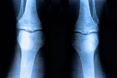Knäröntgenstråle royaltyfri foto