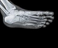 Knöchelgelenk mit Fuß und dem Schienbein Stockbild