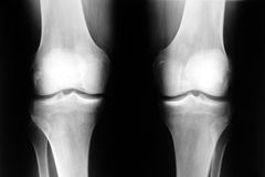 Knee. Human knee xray front photo stock images
