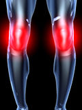 Knee Ache - Anatomy Royalty Free Stock Photo
