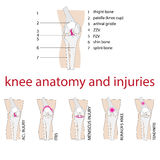 Knee anatomy. Vector illustration of knee anatomy with description and injuries Royalty Free Stock Photo
