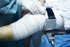 Knee arthroscopy orthopedic surgery operation Stock Photo