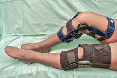 Knee braces. Female's legs in two different types of knee braces used after knees injuries isolated on green medical canvas Stock Image
