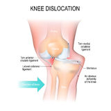 Knee dislocation. Lateral trauma to the knee, torn collateral ligaments, cruciate ligament injury and meniscus injury. An obvious deformity of the knee. Human Royalty Free Stock Photography